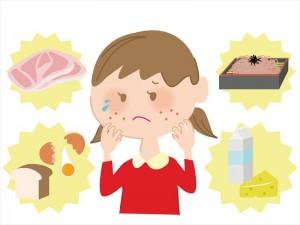 植物アレルギー